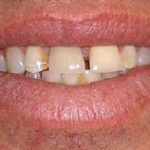 Dental Implant Zirconium Crown Procedure Before