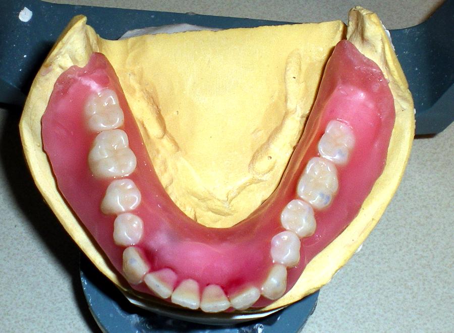 implant-denture2