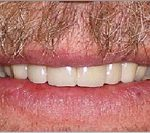 After Zirconium Crowns