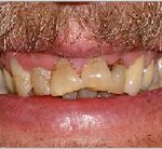 Before Zirconium Crowns