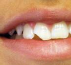 Dental Tooth Ache – Huntington Beach