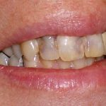 Meet-Your-Cosmetic-Dentist-before