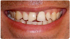 cosmetic-dentistry-services-before