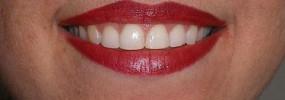 reconture-gum2